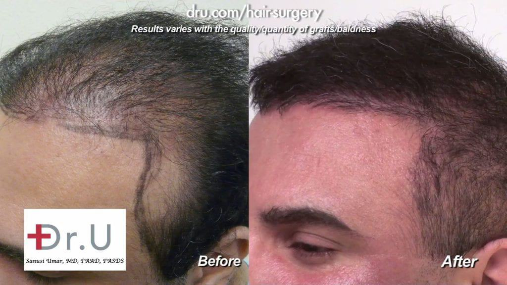 Hair transplant repair and scarring