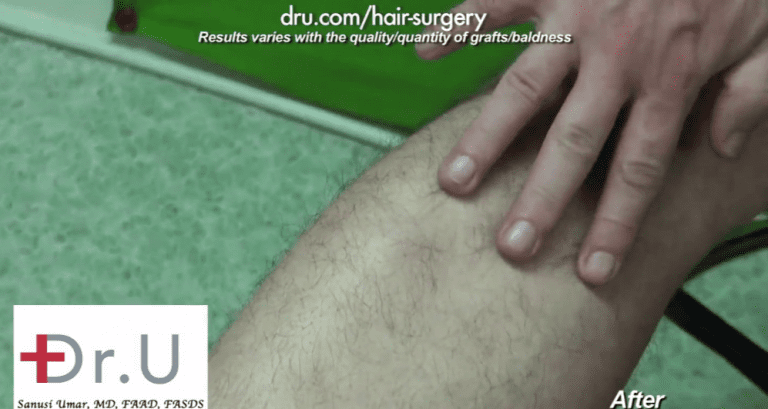Leg donor area after surgical treatment for sparse brows shows excellent signs of healing