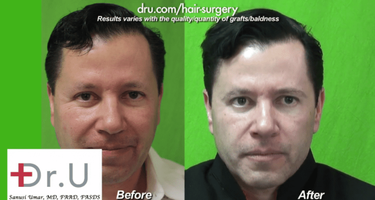 This patient's surgical treatment for sparse brows with leg hair made a significant difference in the overall appearance of his face.
