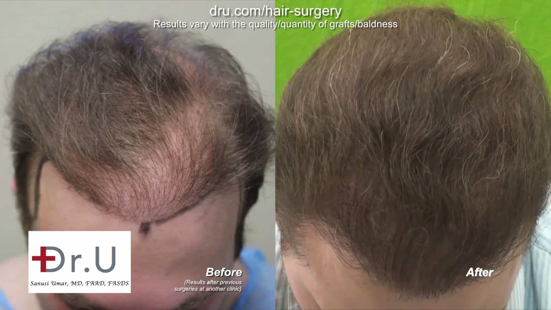 DrUGraft body hair FUE Restores donor depleted bald patient: Patient after treatment from Dr. Umar