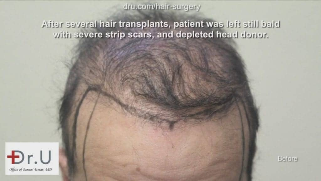 This patient asked himself, can a hair transplant really work for the hairline? Dr. Umar was able to come up with a realistic plan and graft count to create the changes that were desired.