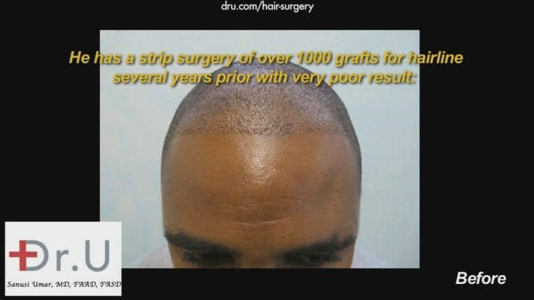 Receding hairlines in black men should be treated with specialized tools to help ensure the best yield possible. This African American patient did not experience the growth he wanted