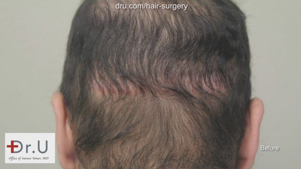 Photo showing patient before his hair transplant reparative surgery with Dr. Umar showing the linear hair restoration scar left behind from a previous procedure.