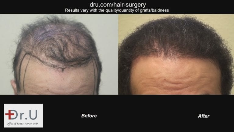 Dr.Umar restores entire head of hair using 1100 grafts taken from the scalp and the body.
