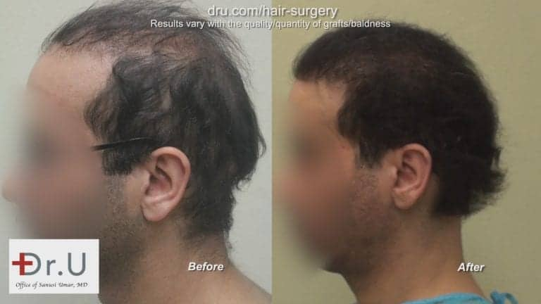 The Dr.UGraft can reverse the results of a poor hair transplant. This patient's case used body hair grafts for his bad hair transplant repair procedure