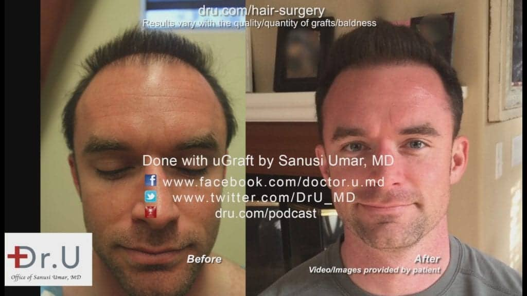 This patient is showing off the results of his hair transplant surgery by Dr. Umar in Los Angeles.