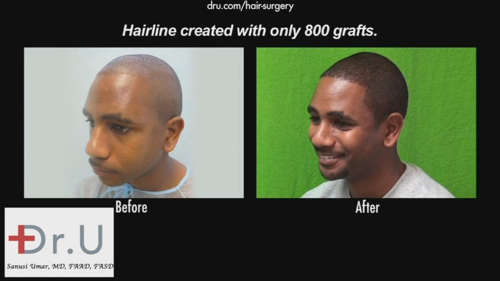 Dr. Umar used only 800 grafts to create the hairline this patient desired.