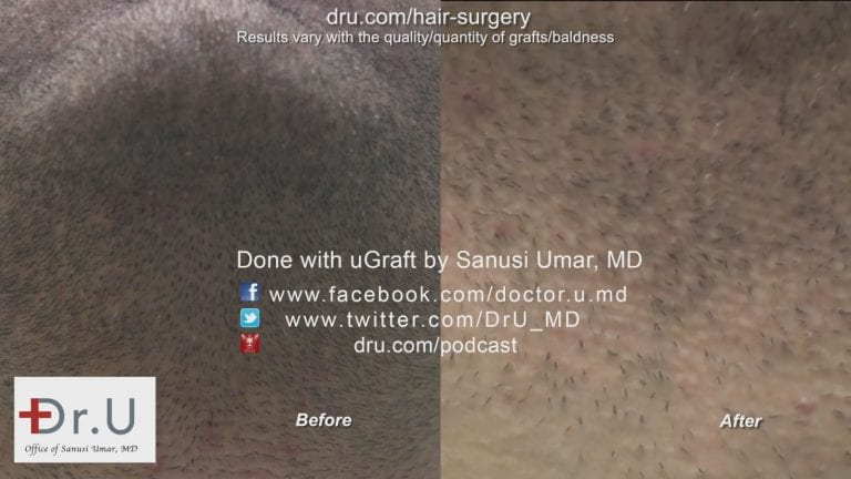 The Dr.UGraft™ left behind no visible hair restoration scar remains at the beard donor area