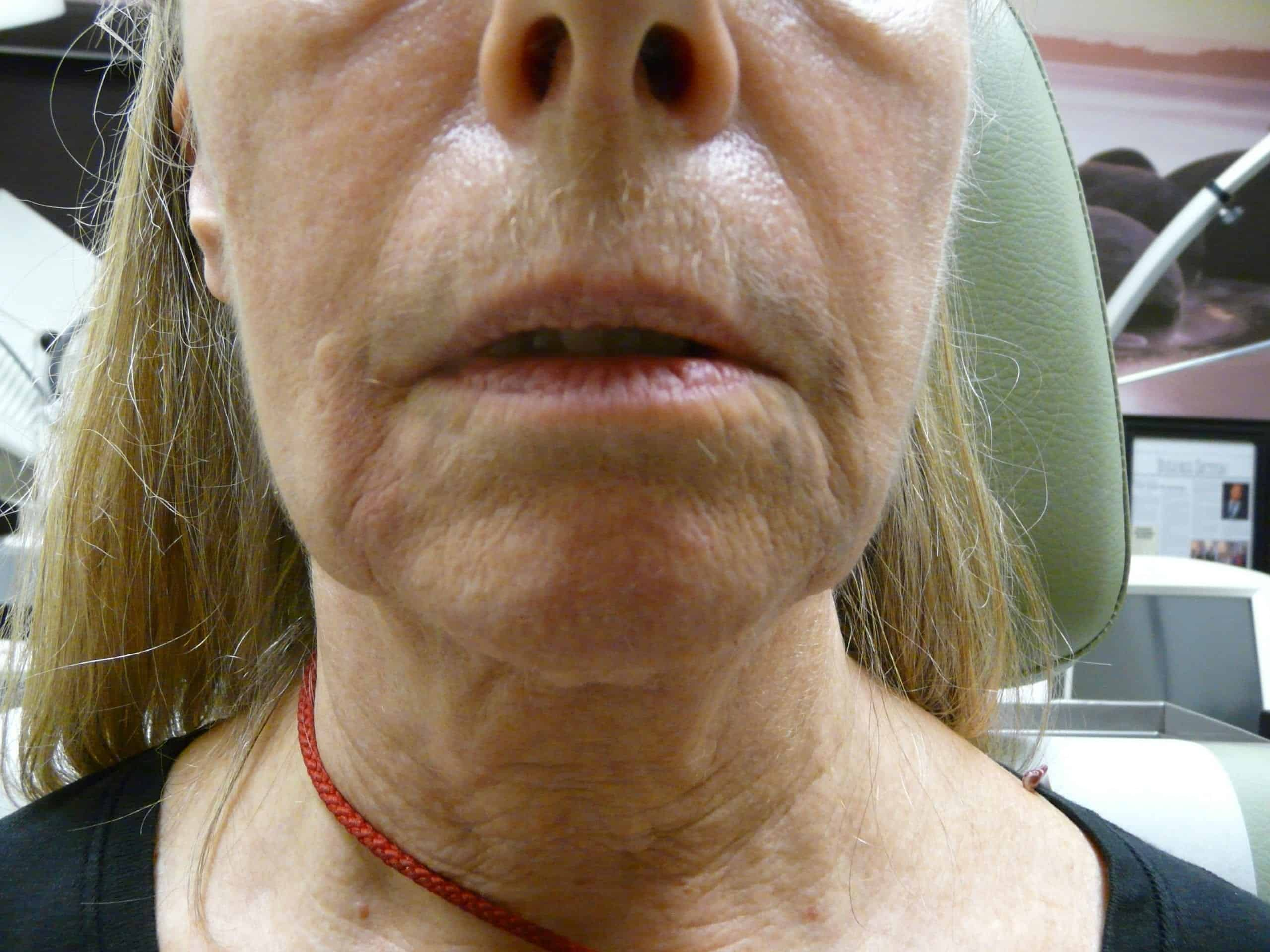Before non surgical jowllift in beverly hills patient using dermal fillers.