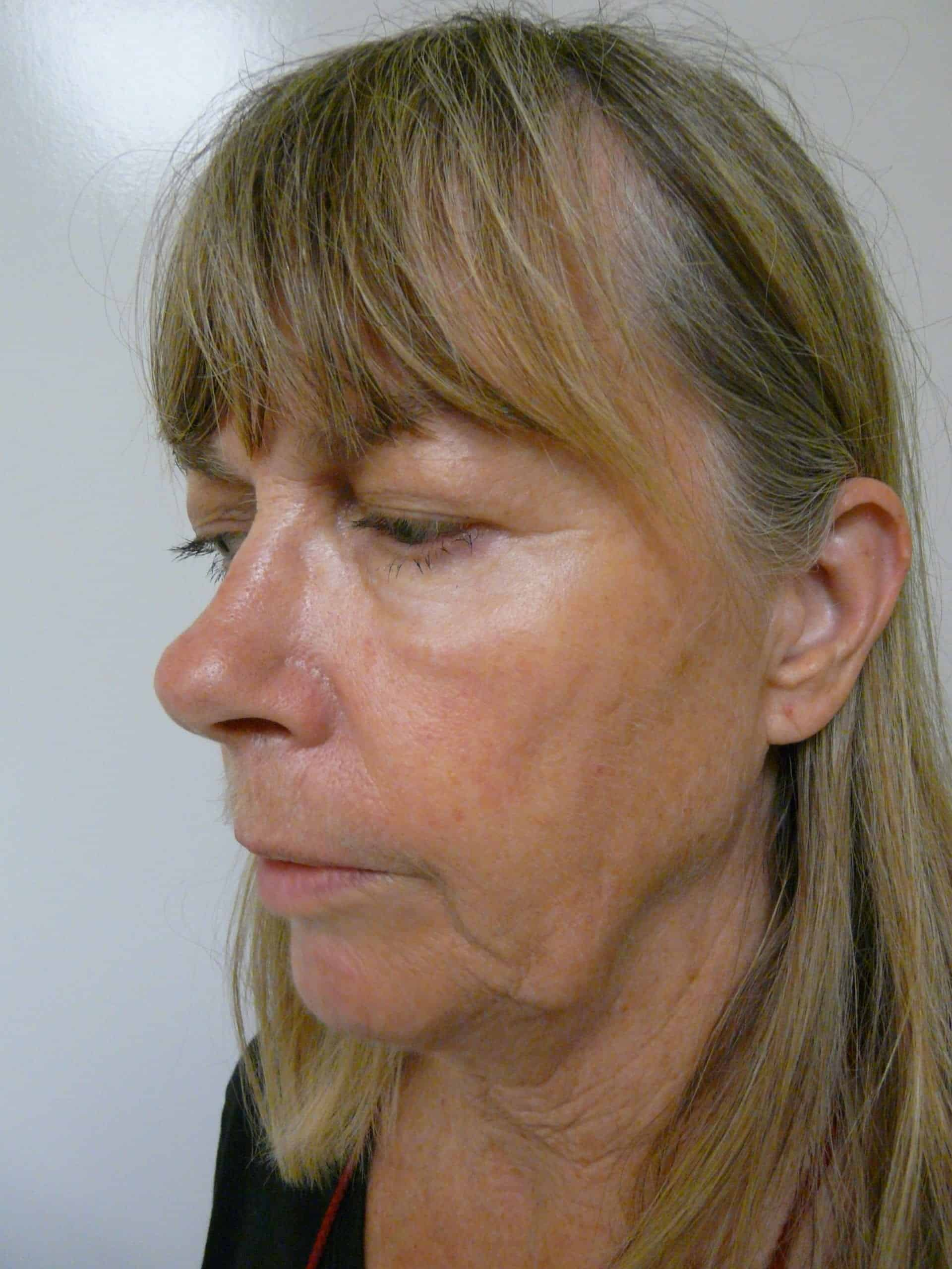 The patient's picture before Dr. U's jowl lift without surgery.