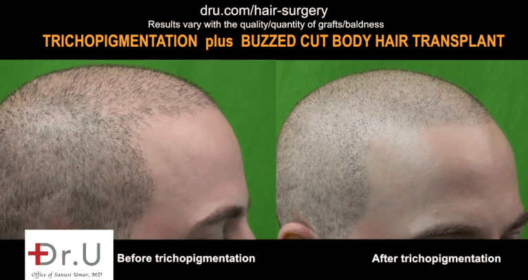 Incredible results of SMP after FUE hair transplant.
