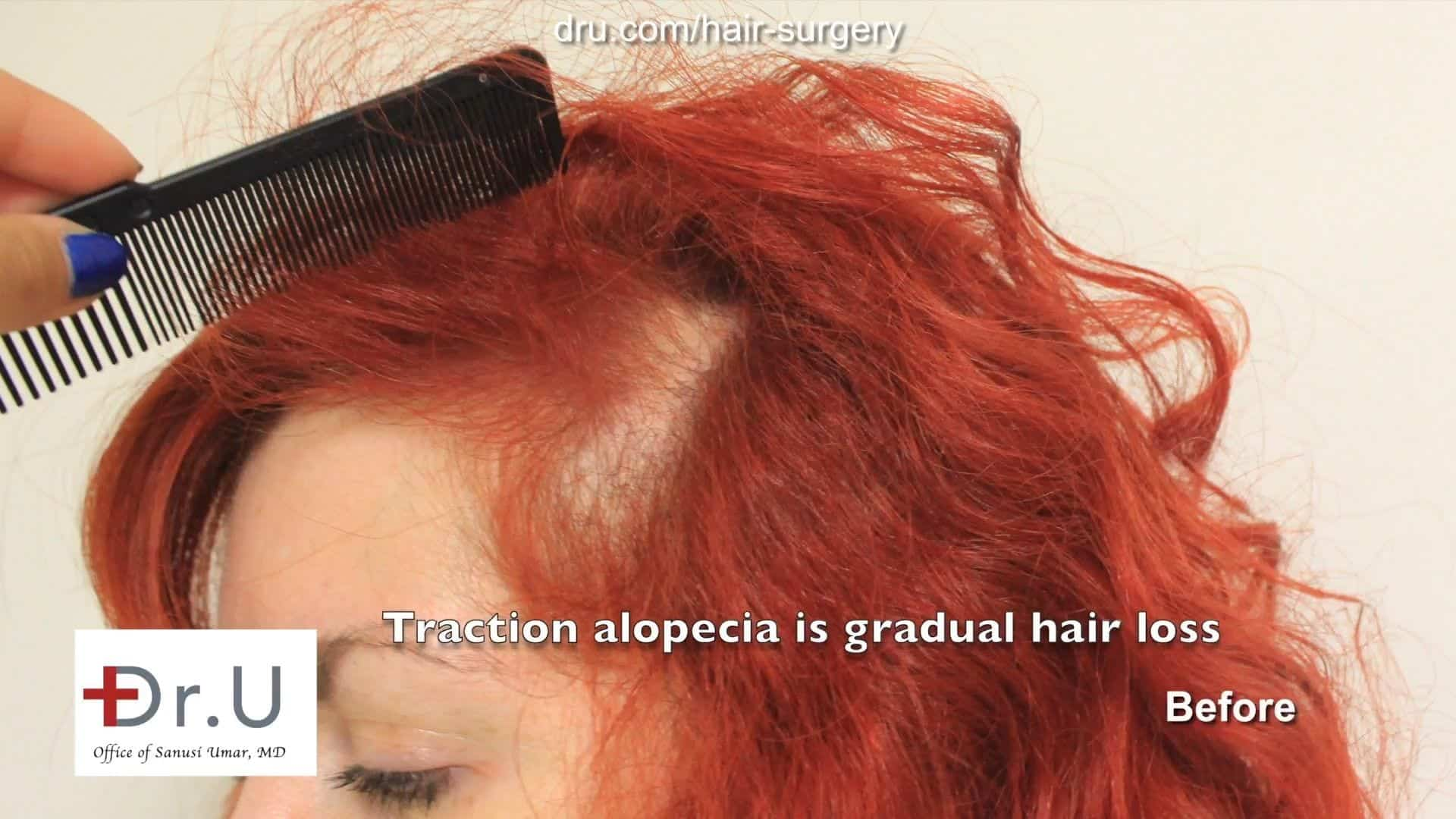 Before hair transplant for female traction alopecia using Dr UGraft