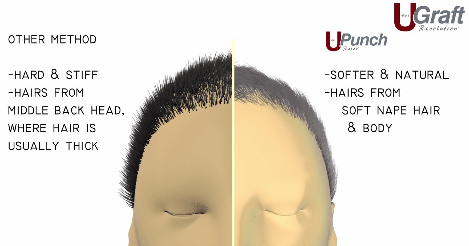 Dr.UGraft FUE Repair Procedure