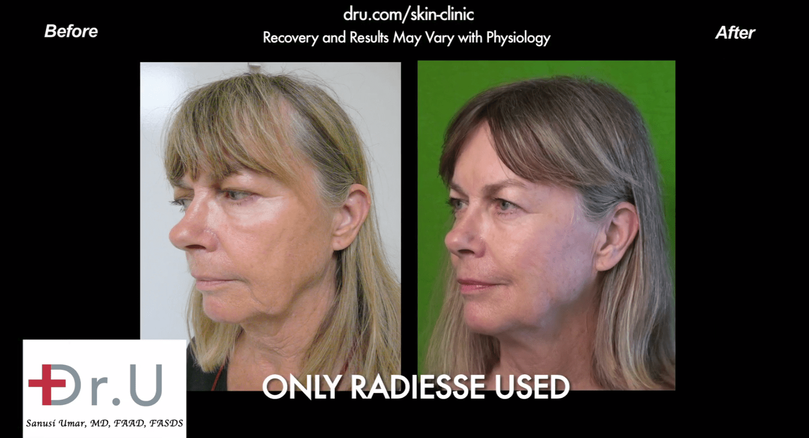 This patient used radiesse for a jowl reduction without surgery*