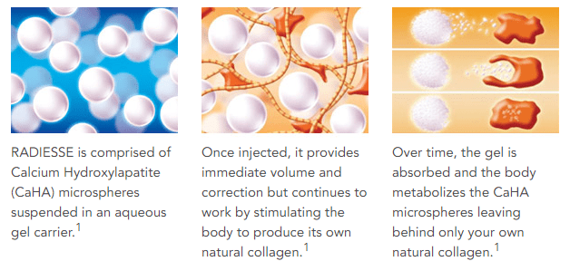 Radiesse provides immediate correction and continues to work by allowing the body to produce its own natural collagen.