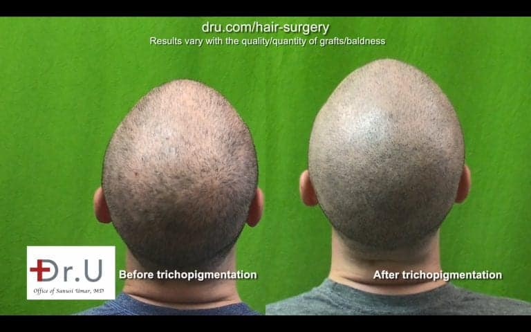 Get rid of hair transplant scar with Dr.UGraft FUE and SMP combination.