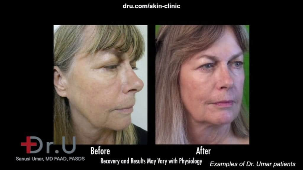non surgical jowl lift In beverly hills patient