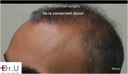 Weak and thinning temple points prior to hair transplant correction using DrUGraft