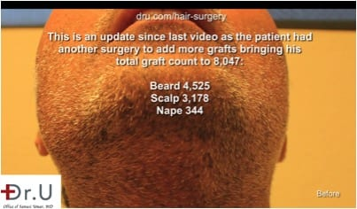 Primary donor area for the Dr.UGraft corrective hair surgery