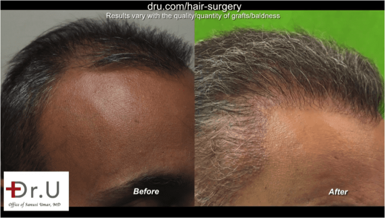 Stronger and fuller temple points after the Dr.UGraft repair to fix unsuccessful hair transplant from strip surgery
