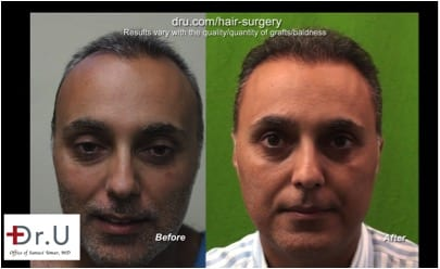 Full and natural hairline following Dr.UGraft FUE Corrective hair surgery*