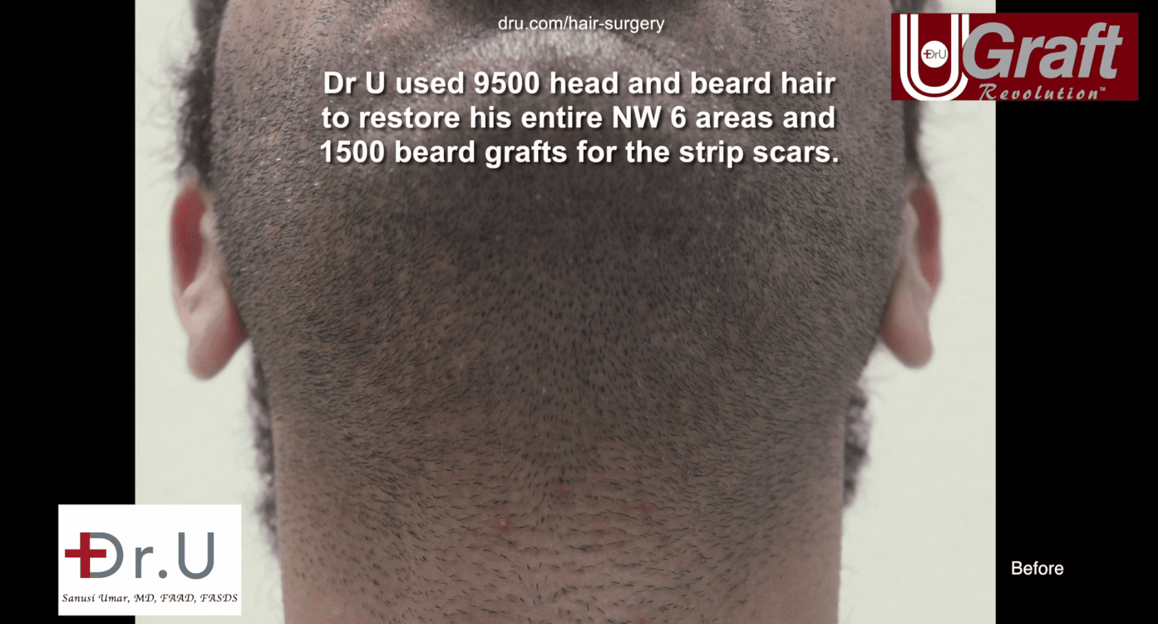 Dr. Umar use his body hair transplant system to pull 1500 beard grafts to cover this patients strip scars.