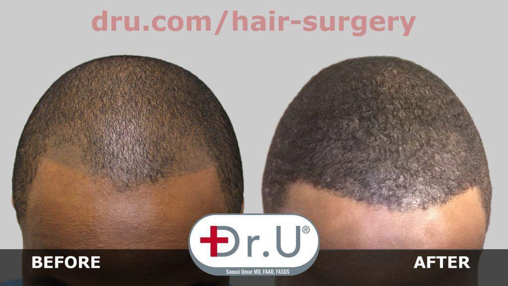 HS-005 - Featured Image - Bad Hair Tattoo Repair