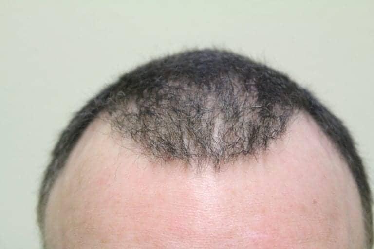 Previous bad hair surgery outcome