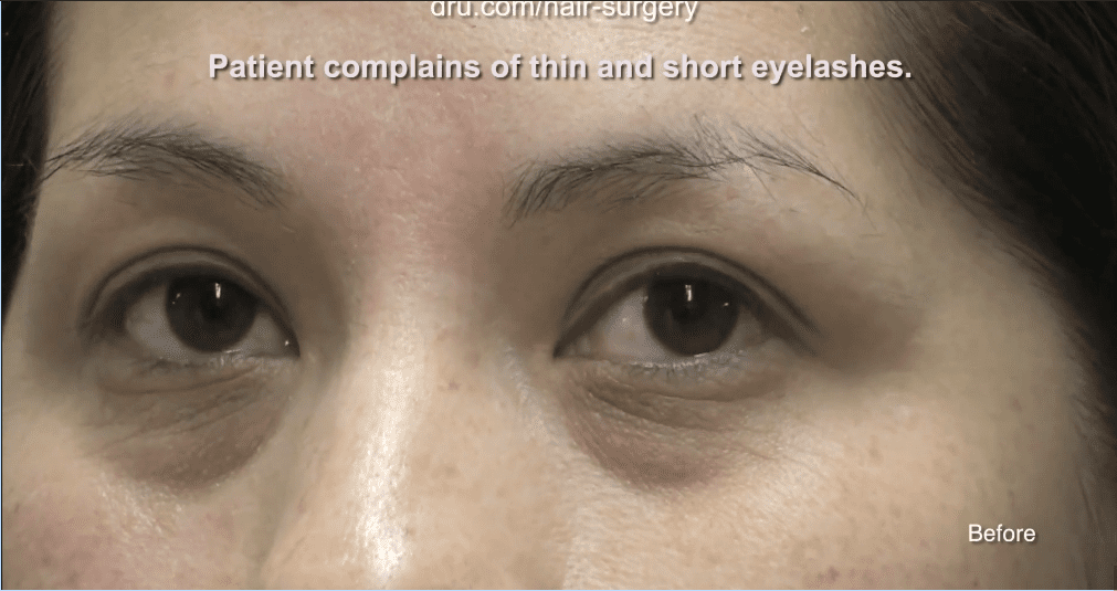 This patient had thin and sparse eyelashes before Dr.UGraft's eyelash extension surgery