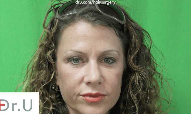 The patient hopes to correct the look of her thin, over-plucked eyebrows.