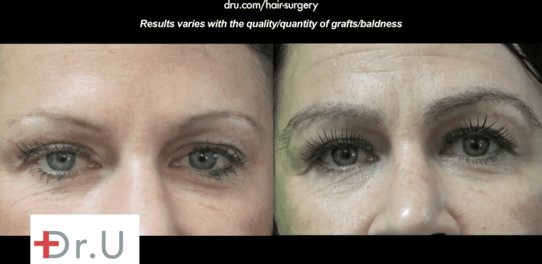 Before and after eyebrow restoration surgery with nape hair showing the thick shaped eyebrows inspired by Kim Kardashian