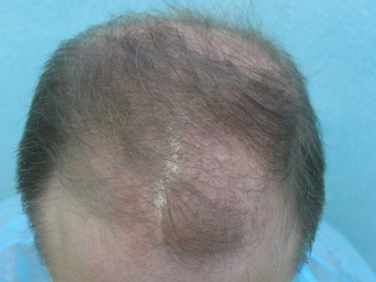 Top view of Norwood 6 FUE hair transplant patient's head