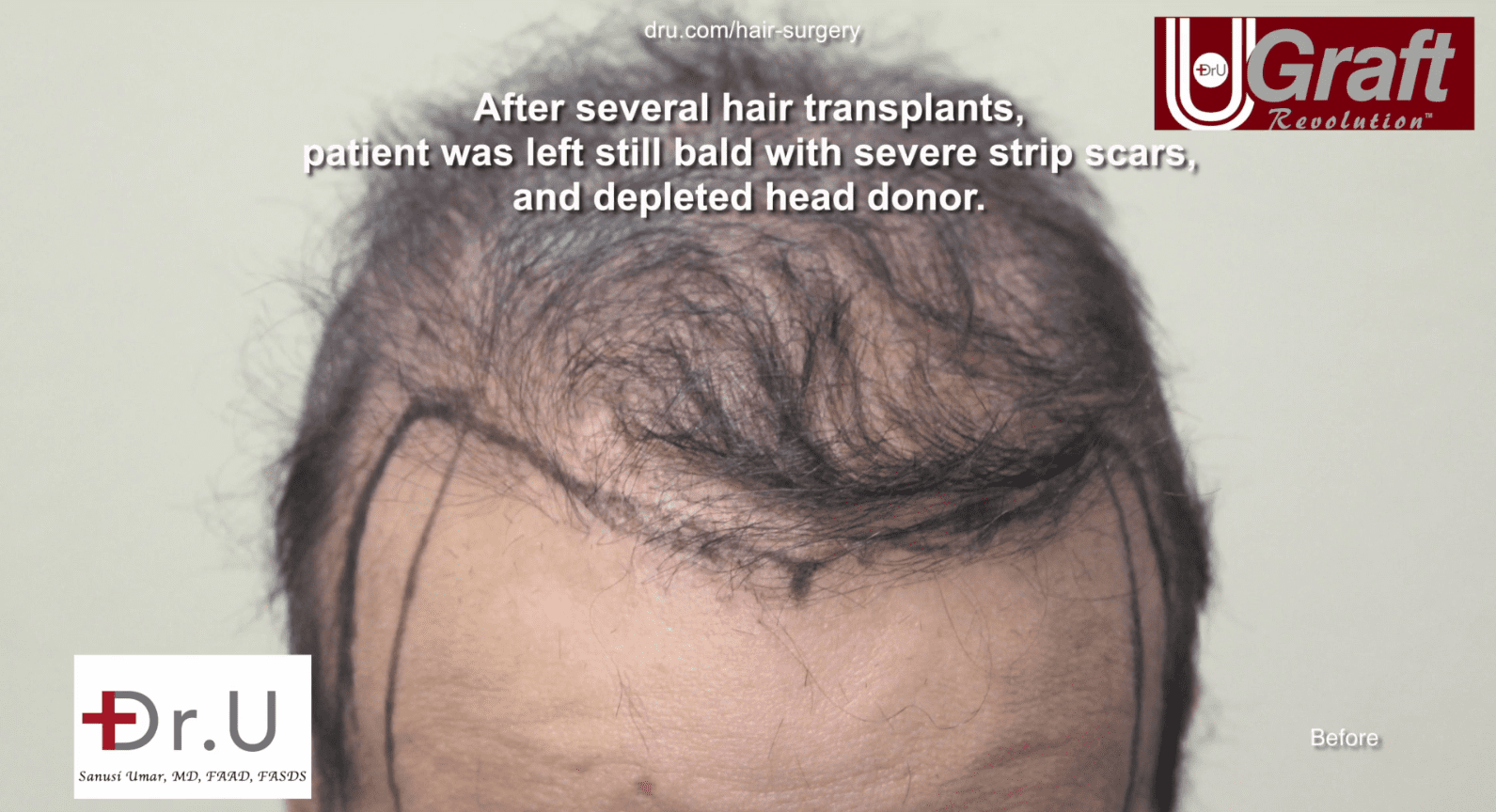 This patients hairline was completely undefined before his hair transplant with Dr. U.