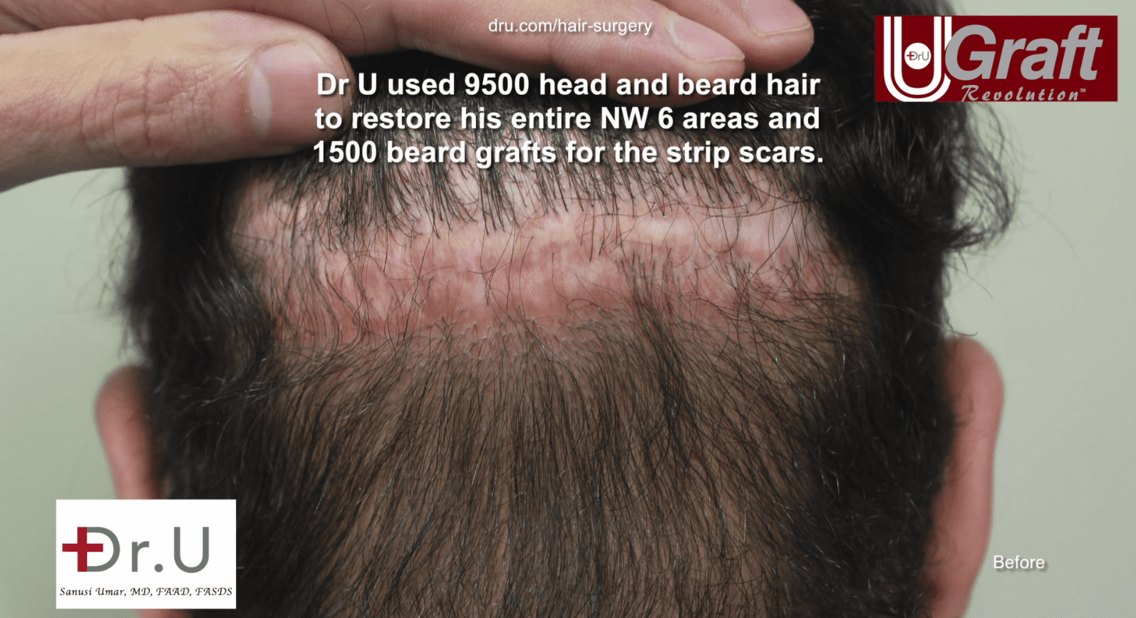 Photo of patient's two scars before Dr. Umar's beard to head hair transplant surgery