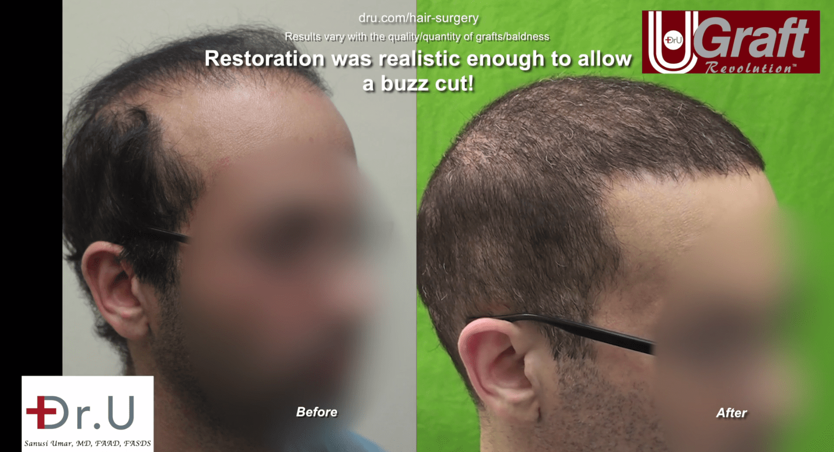 After his hair transplant surgery by Dr. U in Los Angeles, this patient now has filled in temples and a more prominent hairline