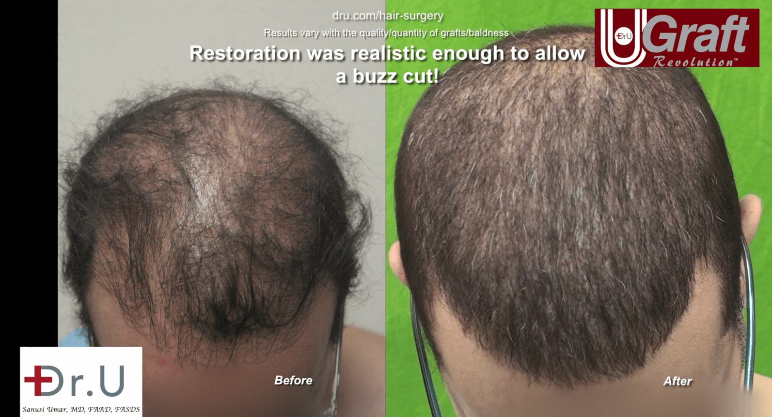 Dr. Umar's hair transplant using beard hair restores NW6 hair loss successfully