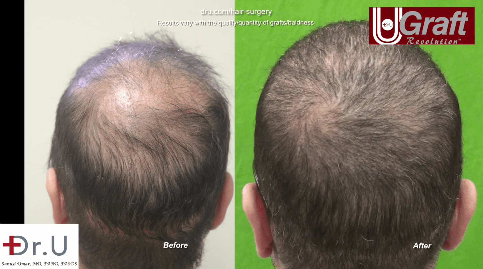 This patient no longer needs to worry about strategically brushing his hair in an attempt to cover his balding.