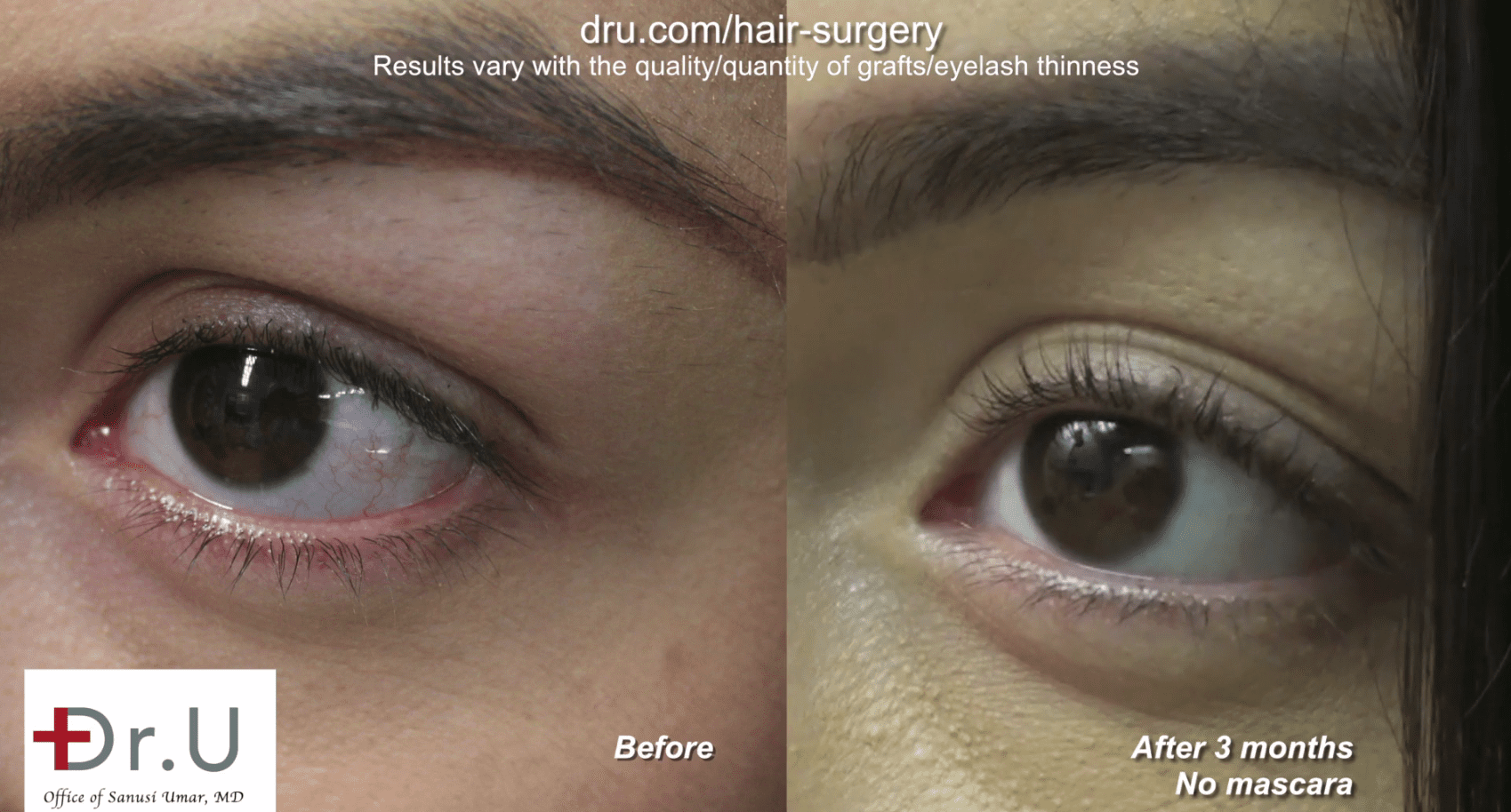 3 months post-operation, the patient noticed fuller and longer eyelashes.
