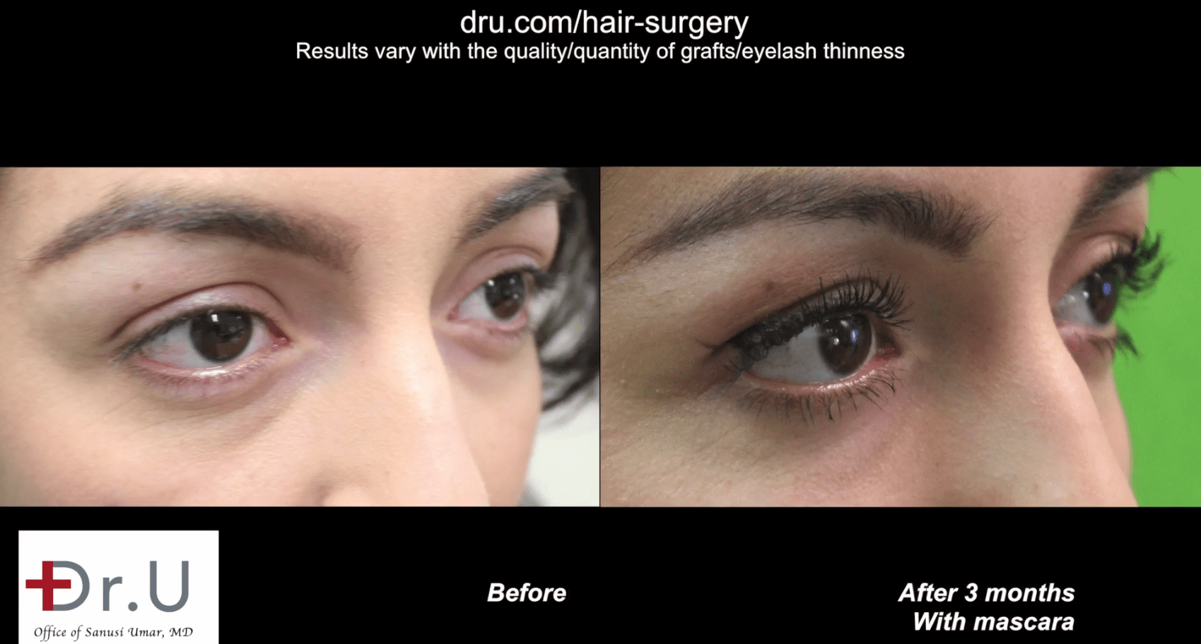 Dr.U was able to create natural looking curvature and angles for the transplanted lashes. This eyelash surgery before and after photo is from 3 months after the transplant.*