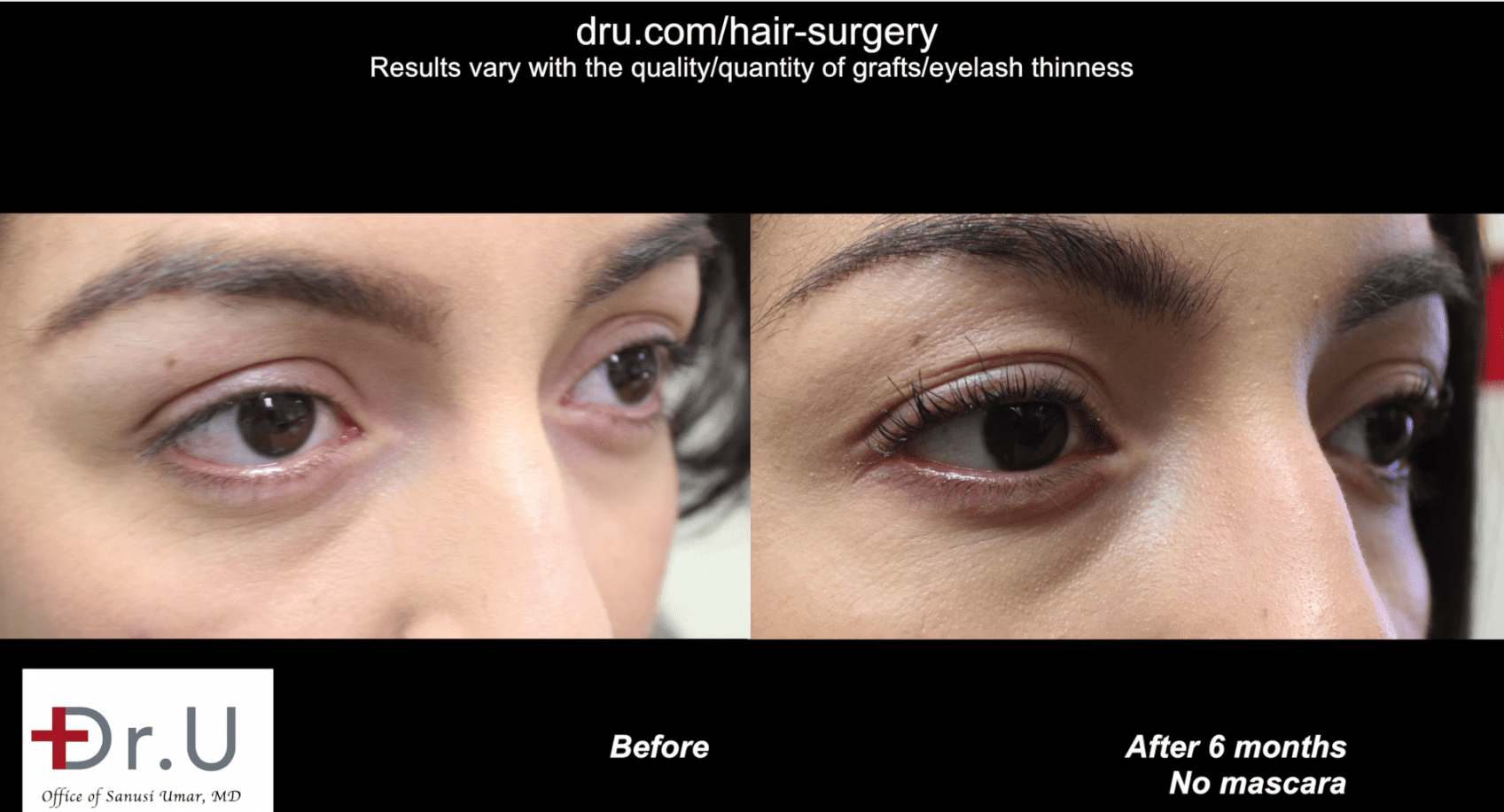 6 months after her surgery, the patient enjoys the fact that her permanent eyelashes require much less perming