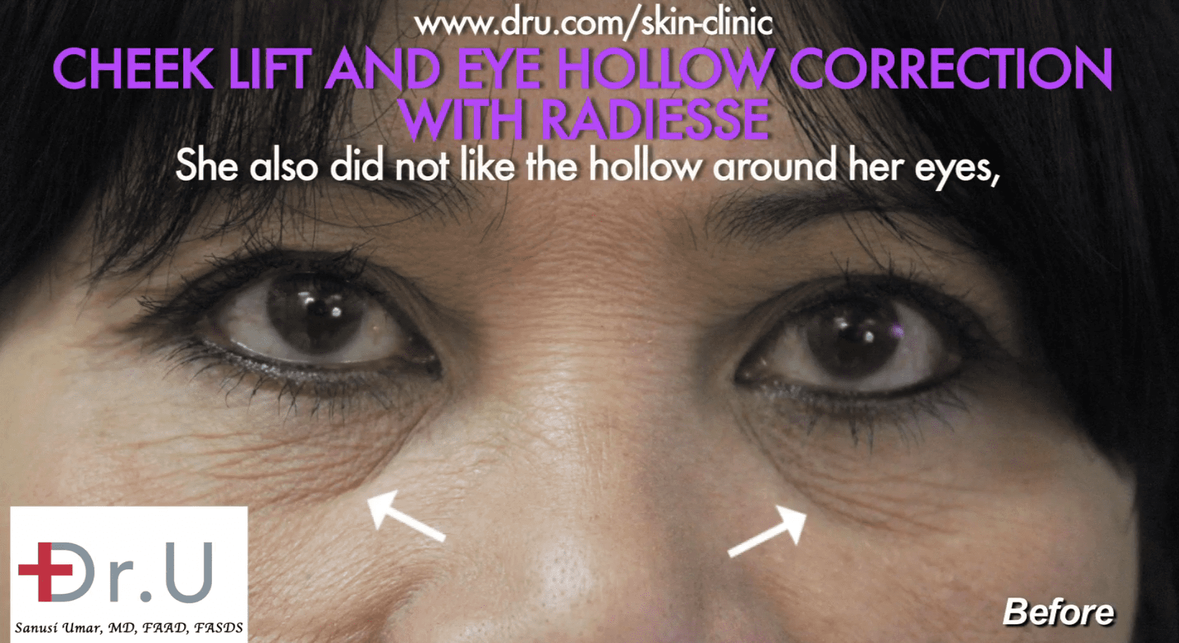 The patient was concerned about her hollow under eyes.