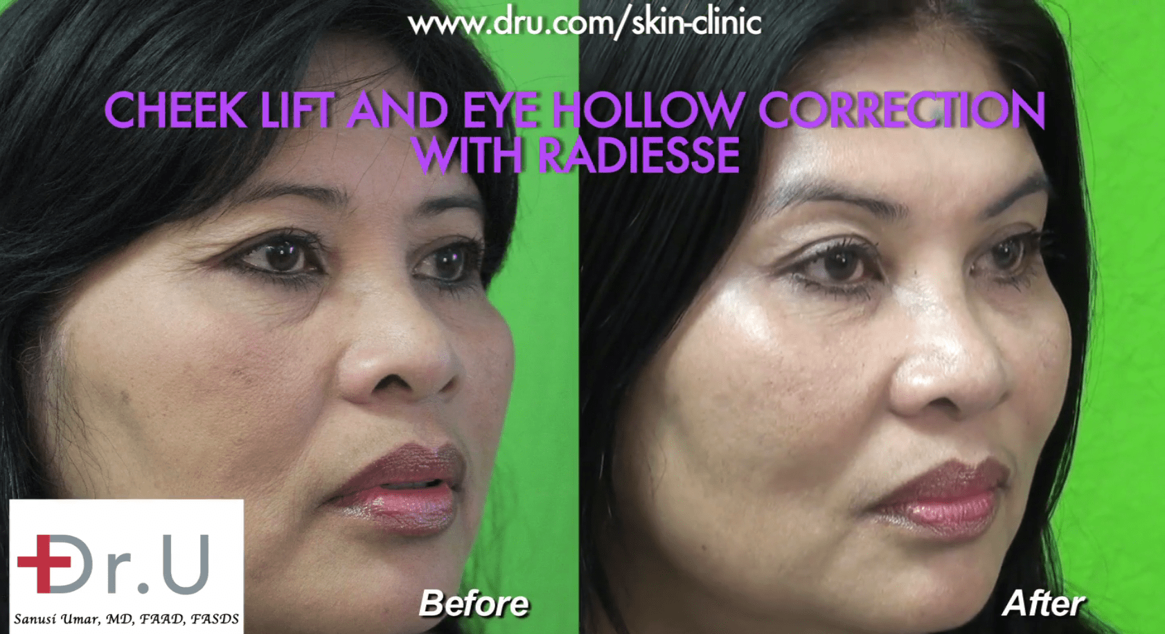 The patient before and after Dr. U performed a non surgical cheek lift and hollow eye treatment using Radiesse.*
