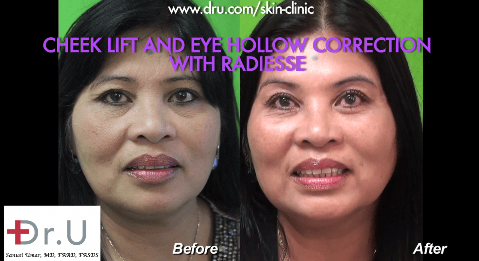 Before and after the patient's non surgical cheek lift and hollow eye treatment.*