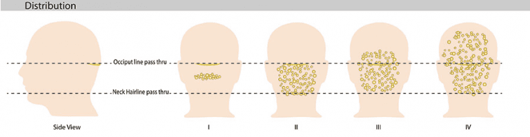 The stages of AKN, which can look like lumps on head under hair, are depicted above.