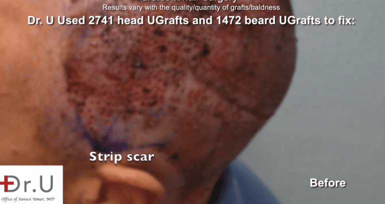 Dr. U harvests UGrafts from both the head and body donor areas in this bad hair transplant repair.