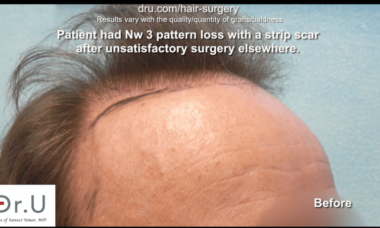 Norwood 3 patient before Dr. U hairline and strip scar repair.