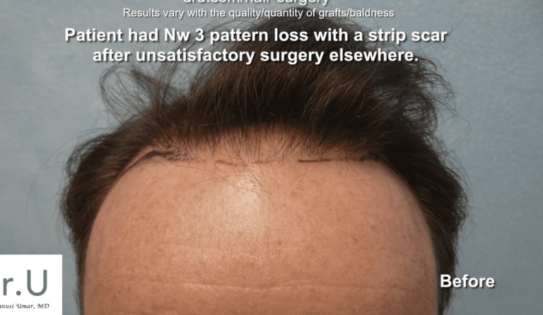 This Studio City patient wants to get rid of a hair transplant scar from a FUSS surgery performed at a different clinic.