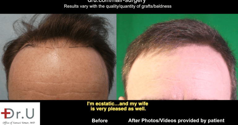 In order to restore and refine the hairline in his Studio City patient, Dr. Umar harvested donor hair from both the head and body.