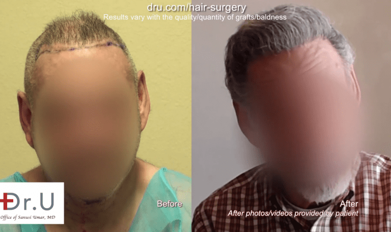 Instead of living unhappily with the results of outdated hair restoration procedures, this patient researched the best corrective hair surgery available and achieved the coverage he wanted.