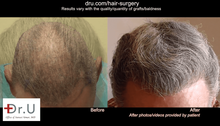 Since the patient's donor hair area was depleted from previous scalp reductions and outdated procedures, Dr. Umar extracted body hair with the Dr.UPunch Rotor to ensure a high body hair transplant success rate.